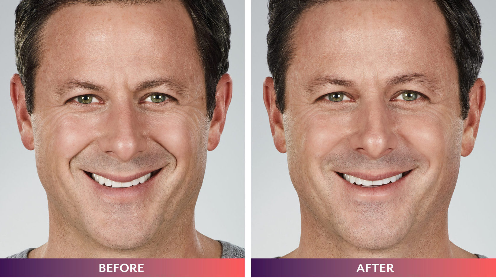 006331_MICHAEL_WHAT-MOVES-YOU_Downloadable-BnA4-scaled-e1593128223608 JUVEDERM