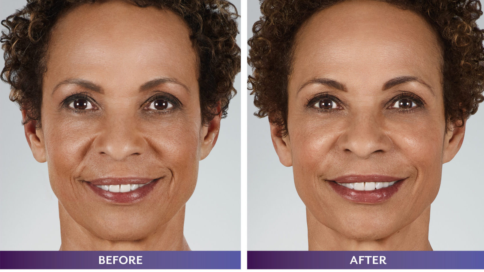 006332_MICHELE_WHAT-MOVES-YOU_Downloadable-BnA4-scaled-e1593128625147 JUVEDERM